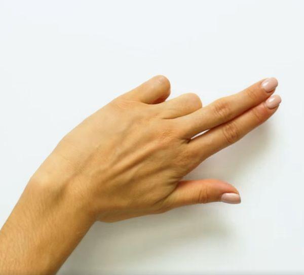 Артроза на ръцете: лечение, симптоми и снимки на ставите